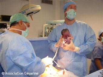 Césarienne - 7 : bébé est né (c) Césarine